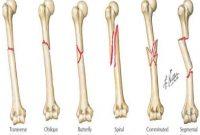 Macam-macam Gangguan pada Tulang