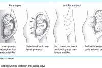 Pengaruh Faktor Rhesus pada Transfusi Darah dan Janin