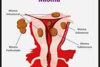 Gangguan Sistem Reproduksi Wanita dan Pria Terlengkap