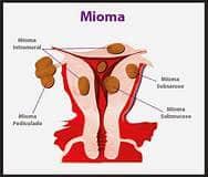 Mioma pada dinding rahim